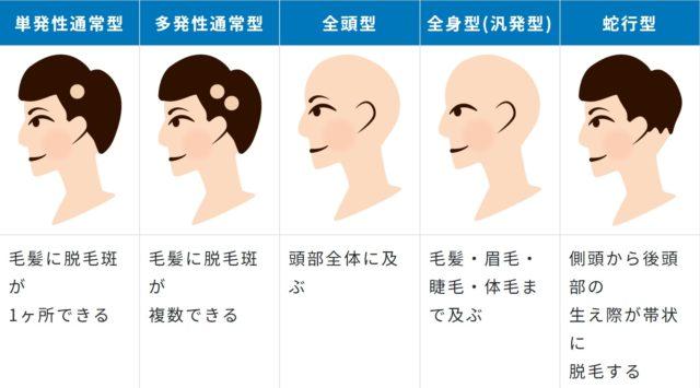 脱毛症段階図