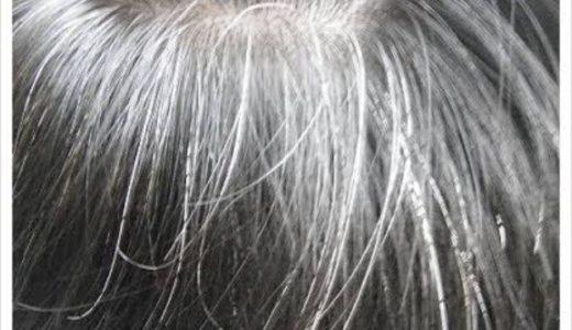 30代なのに白髪!?どうして生えてくるのか原因と改善策